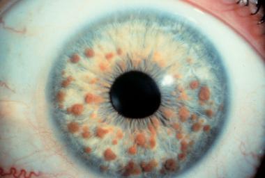 Malattie genetiche autosomiche: cosa sono, sintomi, cause e rimedi - Neurofibromatosi