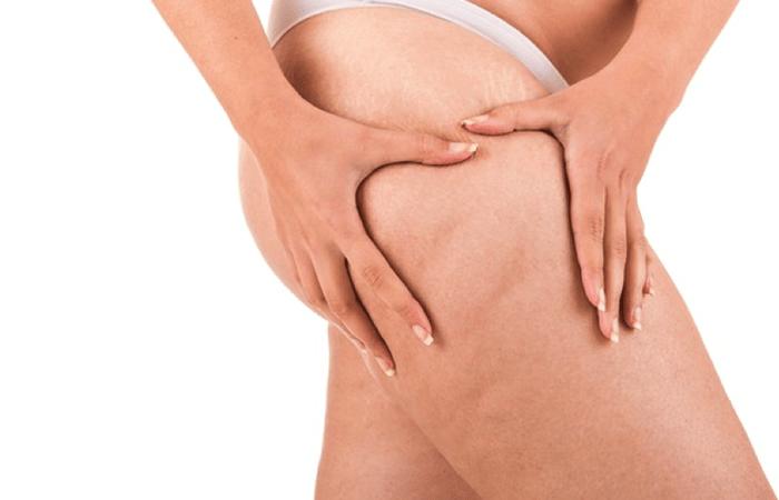 Come curare la cellulite durante la gravidanza - cellulite gambe